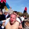 Шуфрича побили в Одесі — підготували й сміттєвий бак
