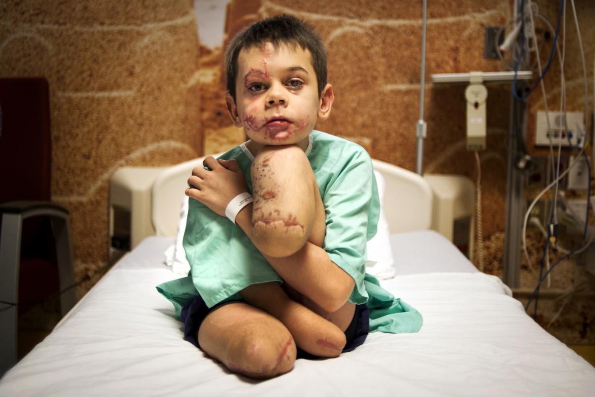 Фото 12-річного хлопчика, що підірвався на Донбасі, перемогло у міжнародному конкурсі
